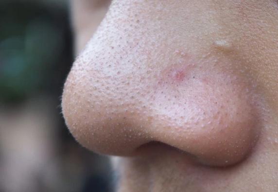 Bouton sur le nez